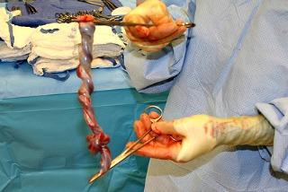. Umbilical Cord Testing