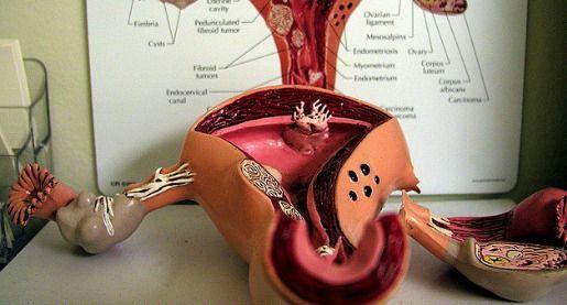 premature-ovarian-failure-show