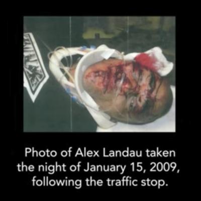 Black transracial adoptee beaten by police.